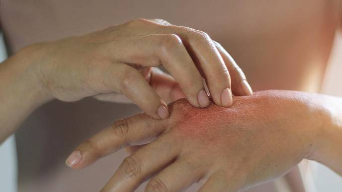 Researchers Uncover Novel Approach for Treating Eczema