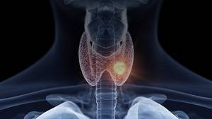 Adapting Care for Breast Cancer Patients Amid COVID-19