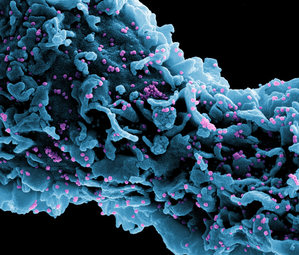 An Oncologist's Perspective from Seattle, Epicenter of America's First COVID-19 Outbreak