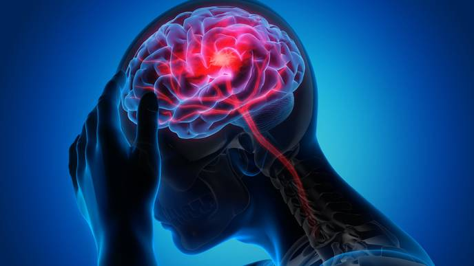 COVID-19 May Be Linked to Brain Complications, But Does It Cause Them?
