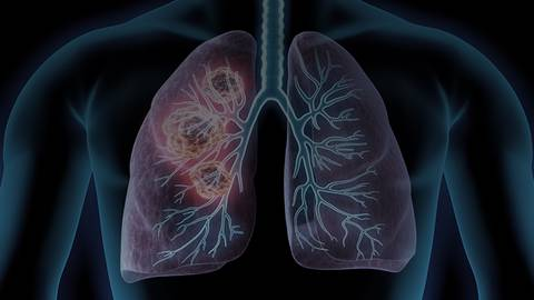 The Changing Landscape of NSCLC: MET Inhibitors