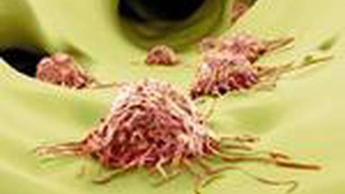 Study Identifies Enzyme Vital to the Metastatic Growth of Prostate Cancer Cells