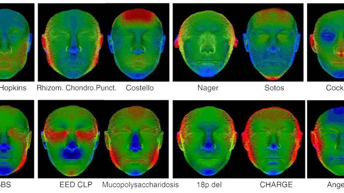 3D Facial Scans Could Speed Diagnoses for Children with Rare Genetic Diseases