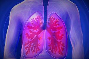 NSCLC: An Aggressive Approach for Personalized Therapy