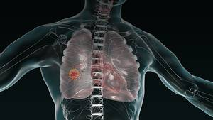 How Immune Checkpoint Inhibitors Changed the Therapeutic Landscape for NSCLC