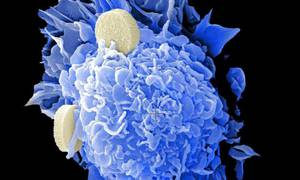 Key Considerations for Initiating a Chronic Lymphocytic Leukemia Therapy