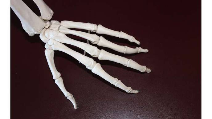 FDA Approves New Wrist Replacement Device to Relieve Arthritis Pain