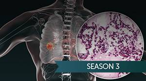 Cases We Don't Forget: Treating a Patient with RET-Mutated NSCLC