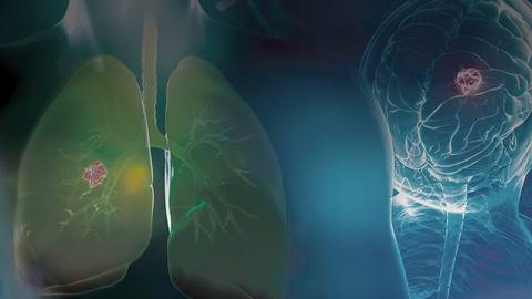 Improving the Quality of Care for Patients Harboring ALK+ NSCLC