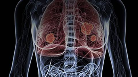 Immunotherapy: Changing Patient Outcomes in SCLC