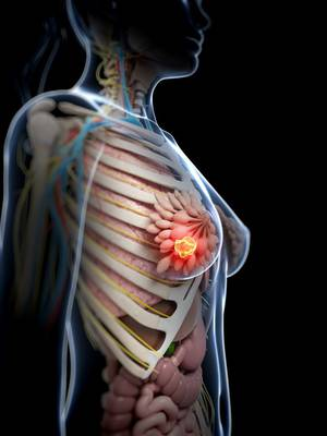 Applications of Proton Therapy for Breast Cancer