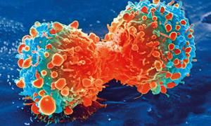 The CAM Guide to Cancer: An Integrative Approach to Prevention, Treatment, and Healing
