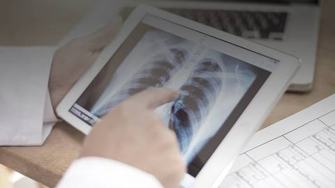 Exploring the Pulmonologist's Role: Managing Early-Stage Lung Cancer