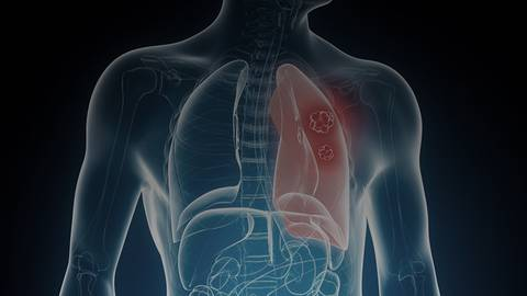 Acquired Resistance to Targeted Therapy of NSCLC: A Global Perspective
