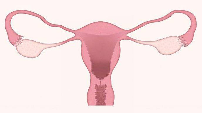 Genetic Analysis Suggests Distinct Subtypes of Polycystic Ovary Syndrome
