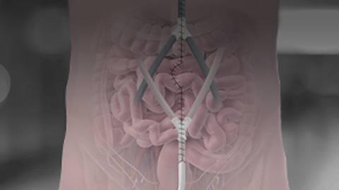HIPEC: A Novel Treatment for Advanced Abdominal Cancers