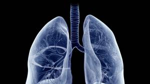 Clinical Pearls for Challenging Cases of Advanced NSCLC