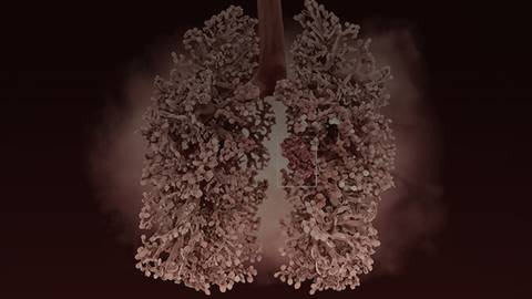 Emerging Research on Non-Small Cell Lung Cancer from ASCO 2021