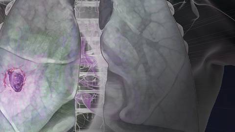 Optimizing Patient Outcomes in Advanced NSCLC in a Rapidly Evolving Treatment Era: A Video-based Patient Case Series