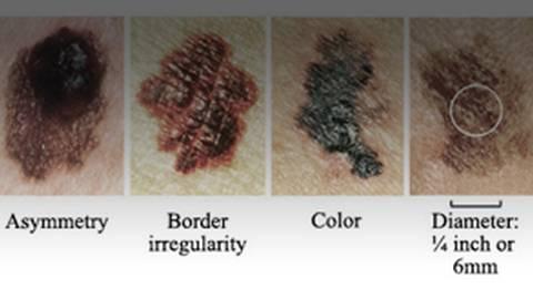 The A,B,C's of Identifying Melanoma